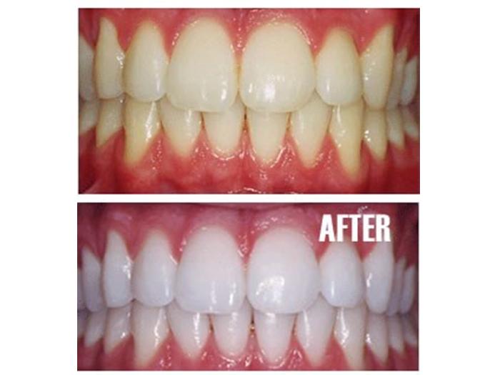 Air Brush Tanning Tanning Beds Teeth Whitening Nail