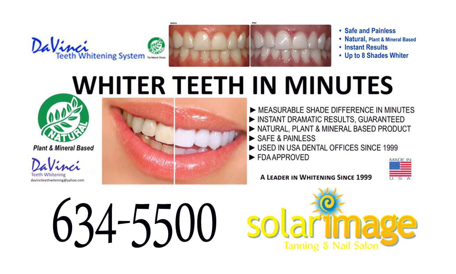 Teeth Whitening Lufkin Tx Solar Image